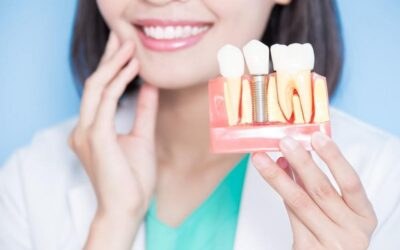 Dental Implants: Your Step-by-Step Guide on What to Expect