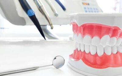 How Can I Prevent Cavities?