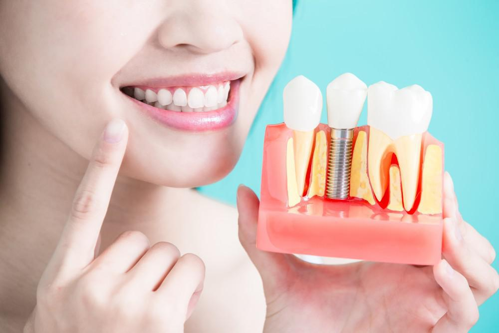 Dental Implants: Why They are the Gold Standard for Replacing Missing Teeth
